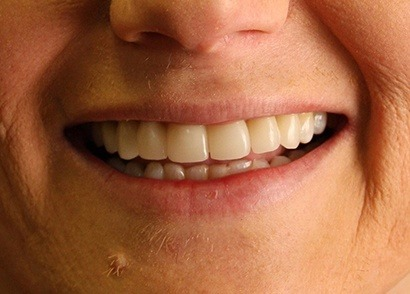 Closeup of perfectly repaired smile