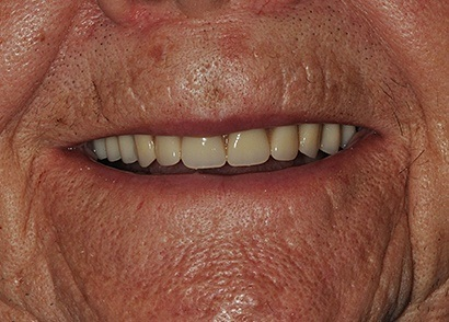 Closeup of repaired and replaced teeth