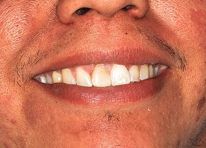 Closeup of discolored smile