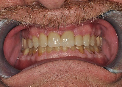 Cracked front tooth repaired