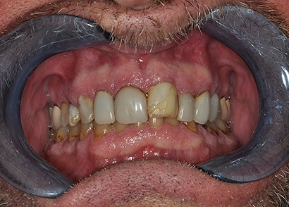 Damaged and cracked front tooth